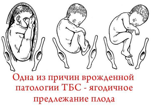 Причины дисплазии тазобедренных суставов у детей