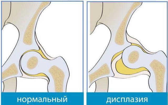 Профилактика дисплазии тазобедренных суставов