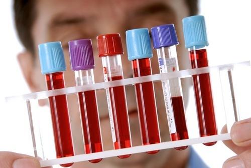 Биохимический скрининг и беременность: все особенности процедуры