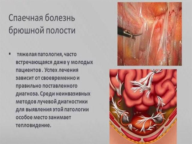Спайки после кесарева сечения: симптомы, лечение, профилактика