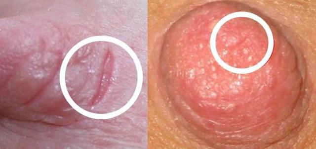 Трещины на сосках при грудном вскармливании: причины, лечение, уход