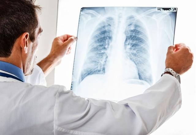 Симптомы респираторного аллергоза у детей