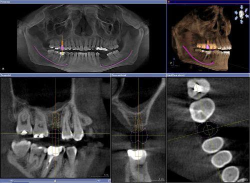 Рентген зубов во время беременности