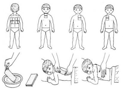 Как поставить горчичники ребенку