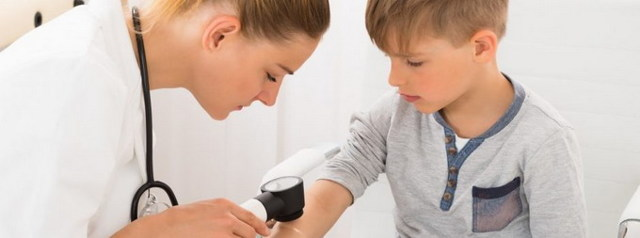 Розовый лишай у детей: симптомы, чем лечить, мази от лишая