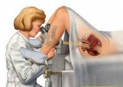 Эрозия шейки матки при беременности: симптомы и лечение