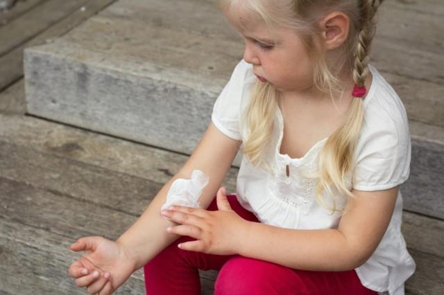 Лишай у детей: как выглядит, разновидности и чем лечить болезнь