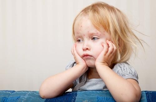 Краснуха у детей: симптомы и признаки, инкубационный период, лечение