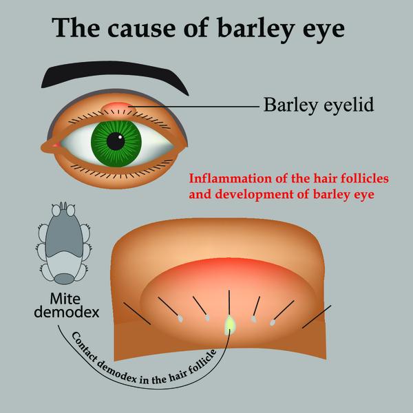 Ячмень на глазу у ребёнка: причины, симптомы, методы лечения