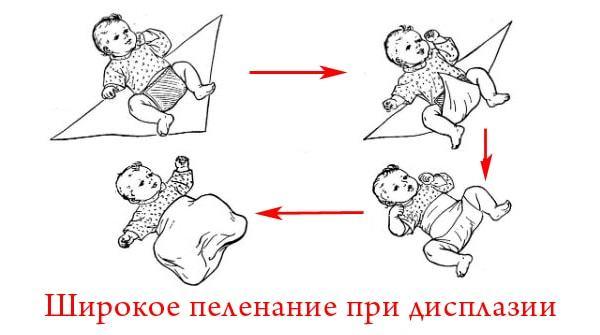 Последствия дисплазии тазобедренных суставов у детей
