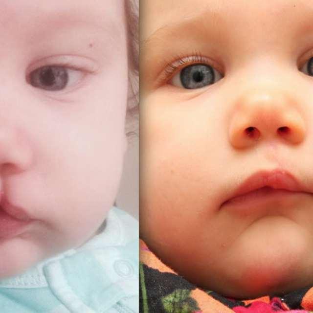 Заячья губа или волчья пасть у детей: причины появления и как кормить ребенка?
