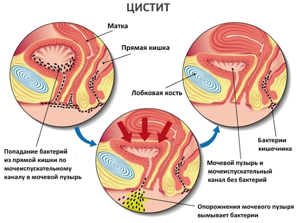 Симптомы и признаки цистита при беременности: как узнать заболевание