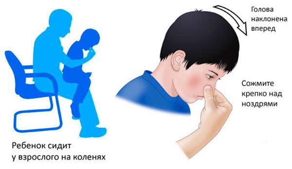53fa5165871e95376277d1a9209b331b - Causes et traitement du sang nasal chez les enfants et les adultes