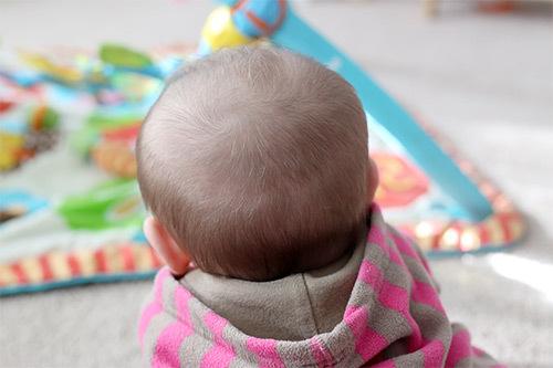 Большой родничок у новорожденного: размер, форма, когда закрывается