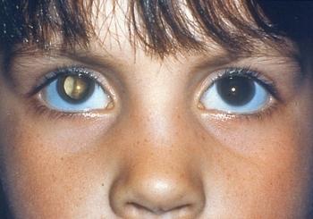 Катаракта у детей: причины, симптомы, виды, диагностика и лечение