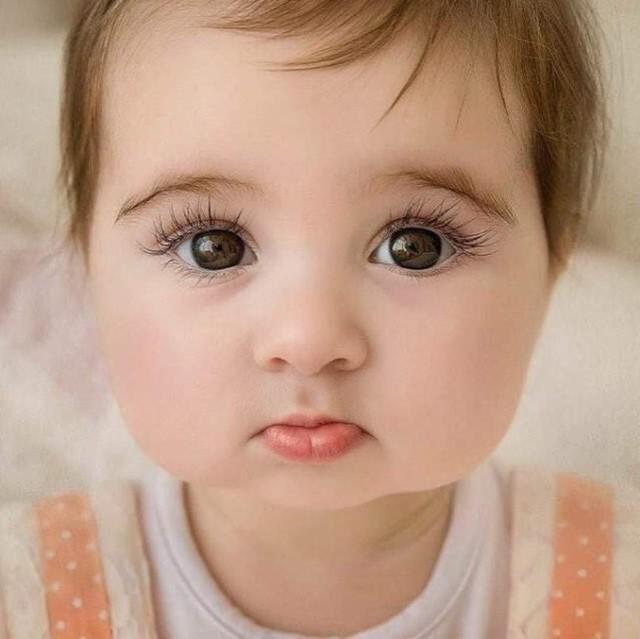 У ребенка глаза разного цвета