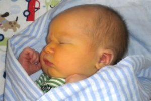 Желтушка у новорождённых: причины, виды, симптомы, лечение, уход