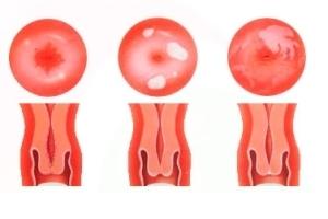 Эрозия шейки матки после родов: причины, симптомы, лечение