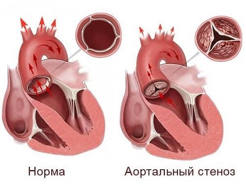 Лечение врожденного порока сердца у детей: нужна ли операция