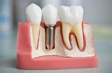 Можно ли во время беременности лечить зубы: все за и против, советы