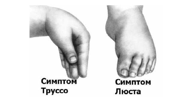 Спазмофилия у детей: симптомы и лечение