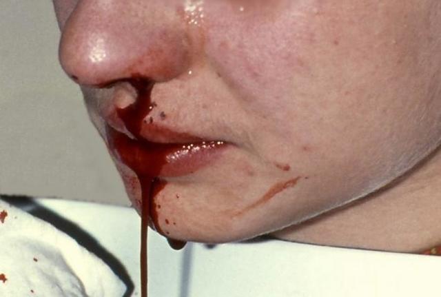 68b0f4a9f00423b8e250c6f7a8ae52ab - Causes et traitement du sang nasal chez les enfants et les adultes