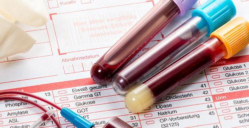 ХГЧ при беременности: суть анализа, норма по неделям, когда и как сдавать