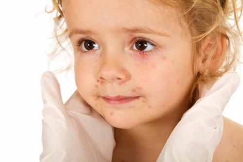 Красные прыщики у ребёнка: причины, разновидности, методы лечения