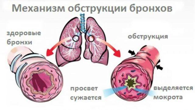 Диагностика и симптомы бронхиальной астмы у детей