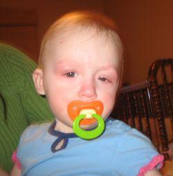 Аллергия на глютен у детей: симптомы и лечебная диета