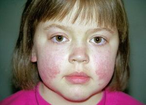 Системная красная волчанка у детей: симптомы, диагностика, лечение