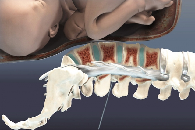 Показания к эпидуральной анестезии при родах
