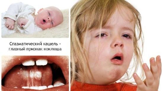 Первые признаки и симптомы коклюша у детей