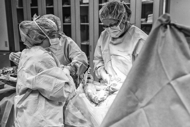Кесарево сечение ход операции