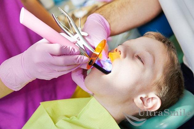 Лечение кариеса передних молочных зубов у детей