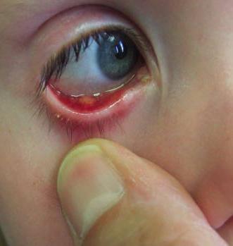 Стафилококк у детей: причины, симптомы, лечение, последствия