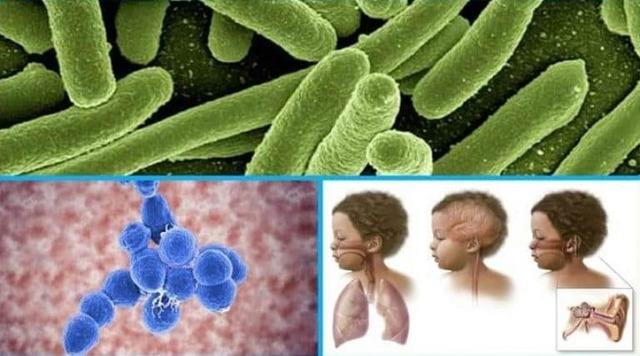 Прививка от пневмококковой инфекции детям: особенности и осложнения