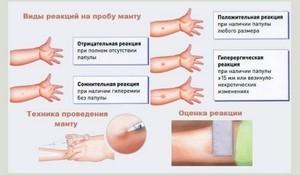 Прививка Манту детям: график, нормы размеров, правила ухода