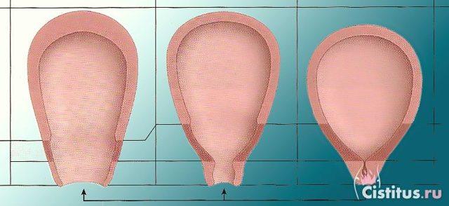 Сокращение матки после родов: как ускорить, гимнастика, препараты, народные средства