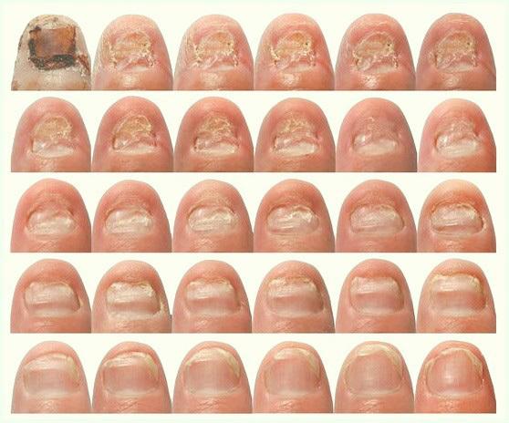 Грибок ногтей у детей: симптомы и лечение