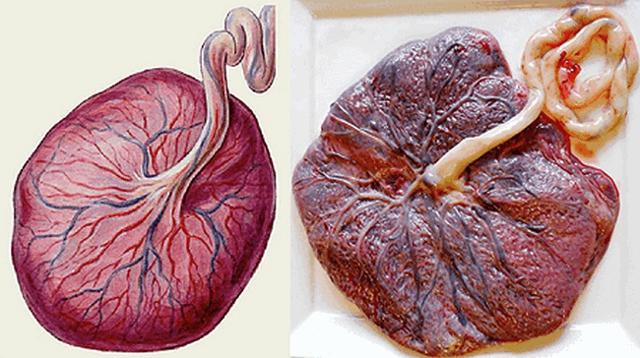 Плацента: фото после родов, как выглядит и что делают с плацентой после родов?