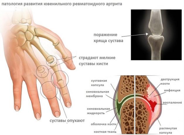 Ревматоидный артрит у подростков симптомы лечение и профилактика