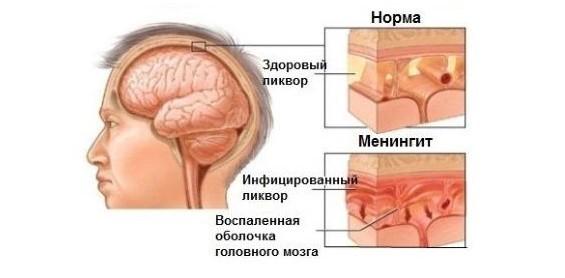 Мышечная гипотония у детей: симптомы, причины, лечение
