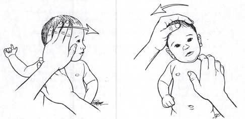 Массаж и гимнастика при кривошее у детей