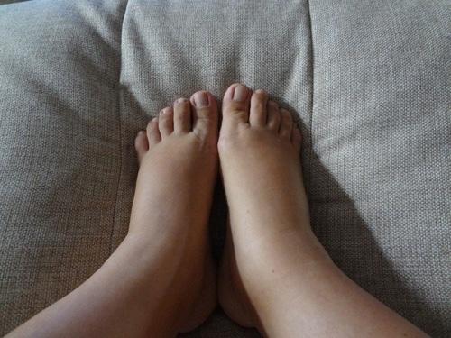 Отёки после кесарева сечения: причины, лечение, профилактика