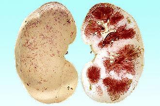 Ангина во время беременности: виды, лечение, последствия