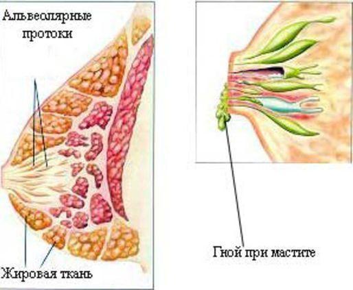 Можно ли кормить грудью при мастите