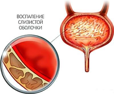 Влияние цистита на беременность: на состояние будущей матери и ребёнка