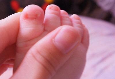 Вросший ноготь у ребёнка: медикаментозное и домашнее лечение