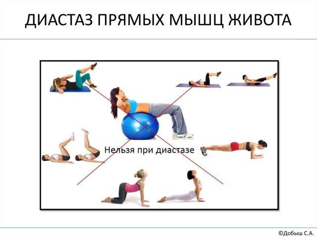 Диастаз прямых мышц живота после родов: что делать, упражнения и лечение